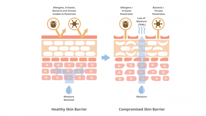 Compromised Skin Barrier – What Is It? Find Out If You Have It.